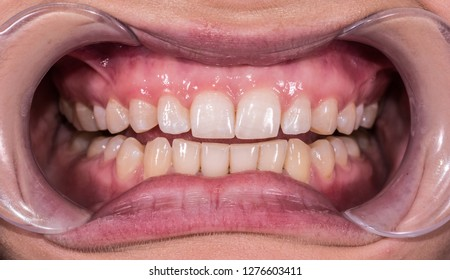 Healthy human teeth with normal occlusion from frontal intraoral view