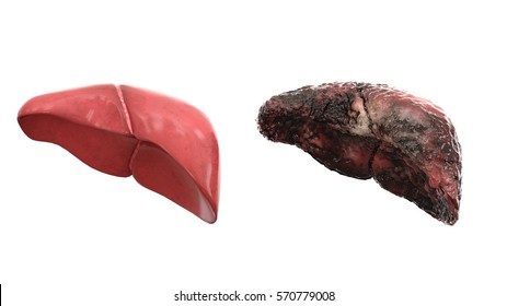 healthy liver and disease liver on white isolate. Autopsy medical concept. Cancer and smoking problem. 3d rendering