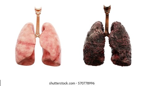 healthy lungs and disease lungs on white isolate. Autopsy medical concept. Cancer and smoking problem. 3d rendering