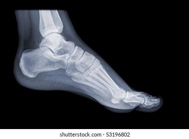 healthy running foot