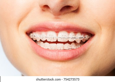 Healthy smile woman with clear brackets