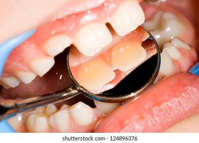 Healthy teeth in mouth of child, course of dental examination
