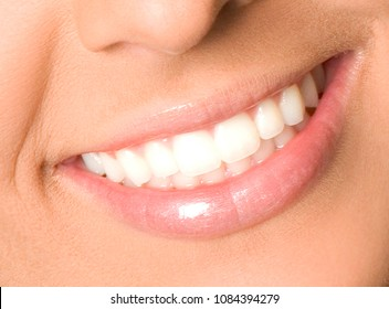 Healthy woman teeth and smile close up
