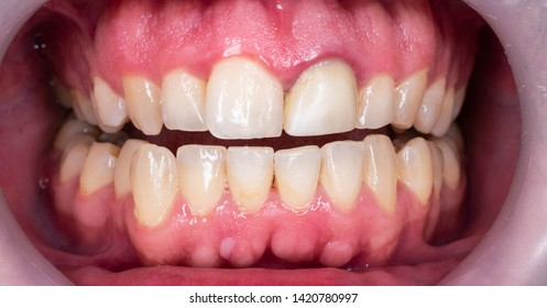 the healty gums structure after the treatment
