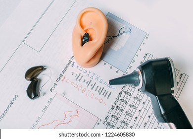 Hearing test concept. Result of hearing exam - audiogram, hearing aids and otoscope on the table, view from above.