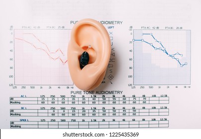Hearing test concept. Result of hearing exam - audiogram, hearing aids on the table, view from above.