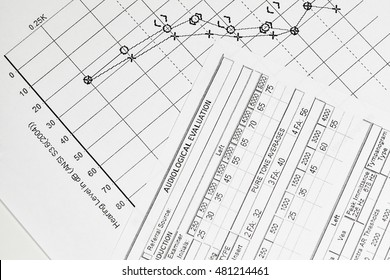 A hearing test graph with the evaluation form
