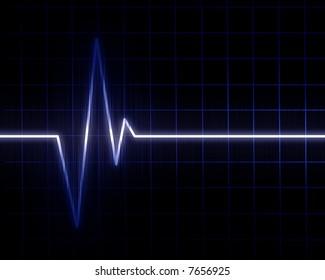 Heart beat on hospital monitor