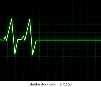 Heart beat on heart monitor