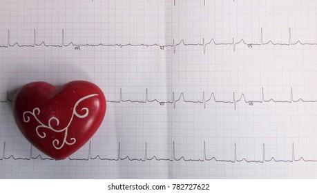 Heart cardiogram of wave in paper.