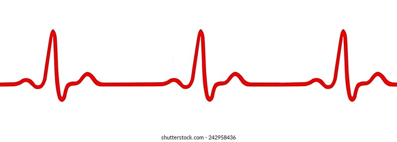 Heart monitor (Electrocardiogram, ECG or EKG) isolated on white background
