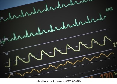 Heart monitoring in emergency room