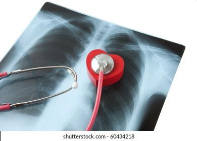 Heart, Stethoscope, X-ray