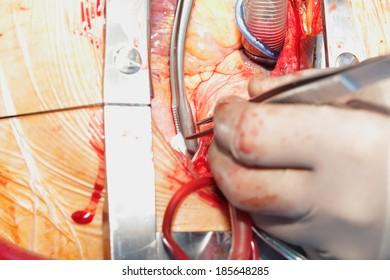Heart surgery. Open heart surgery. Coronary artery bypass surgery.