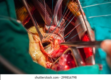 Heart surgery in operating room