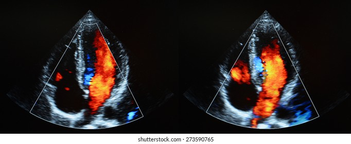 Heart ultrasound - echocardiography