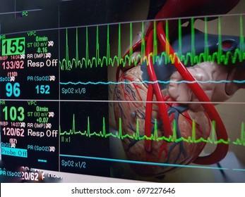 Heart and vital sign EKG monitor.