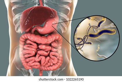 Helicobacter pylori, bacterium colonizing stomach and associated with gastric and duodenal ulcer, 3D illustration