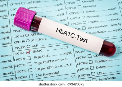Hemoglobin A1c test with sample blood in blood tube.
