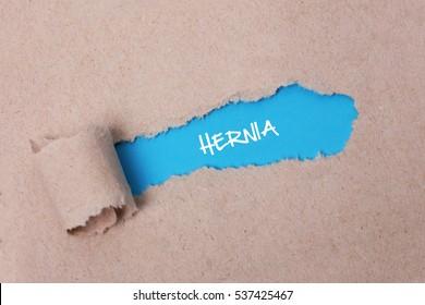 Hernia, Health Concept