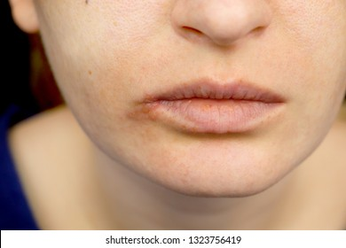 Herpes on the lips: a woman with a cold and the herpes virus is examined by a dermatologist and infectious disease specialist
