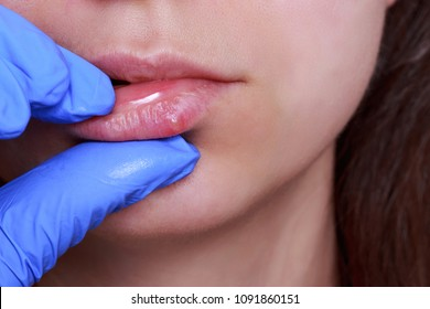 herpes on the lips of a young girl