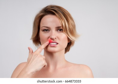 Herpes on lips of the young woman. Woman with herpes virus touching her lips.