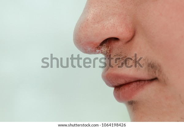 Inflammation In Nose