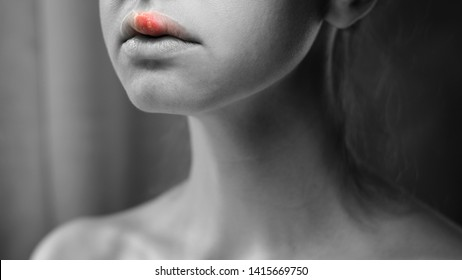 Herpes on the Upper Lip of a Young Woman. Medical Background of a Young Beautiful Girl with Herpes Labialis. Herpes Simplex Virus. Black and White Background with Red Inflammation on Skin