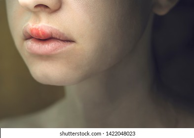 Herpes on the Upper Lip of a Young Woman. Medical Background of a Young Beautiful Girl with Herpes Labialis. Herpes Simplex Virus