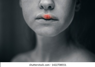 Herpes Images, Stock Photos & Vectors | Shutterstock