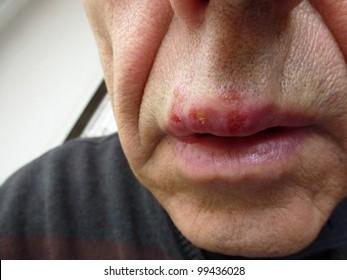 Type 2 herpes Herpes Simplex