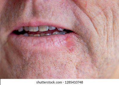 Herpes simplex virus, Herpes at the mouth, Virus herpes infection on male lip, Herpes labialis of the lower lip, Sore at angle of lips.