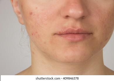 Imágenes, fotos de stock y vectores sobre Woman with Spots