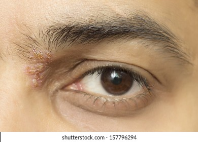 herpes zoster ophthalmicus eye herpetic cold sore