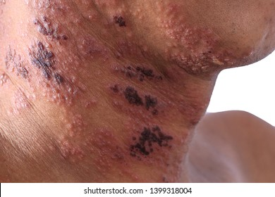 Herpes zoster or Shingles or Zoster; the symtom is infected by Varicella Zoster Virus or VZV.  Skin conditions and remedies like eczema and psoriasis skin rash with blister skin on man