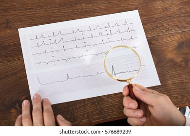 High Angle View Of Person Hand Analyzing Cardiogram Chart Using Magnifying Glass On Wooden Desk