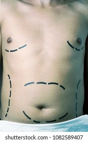 high angle view of a young caucasian man who is about to have a plastic surgery or a liposuction, with surgery lines marked around his belly and his breast
