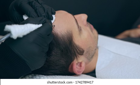 High quality close-up of a man laying on a couch during the esthetician hair treatment. Male tricopigmentation service. Scalp micropigmentation treatment.