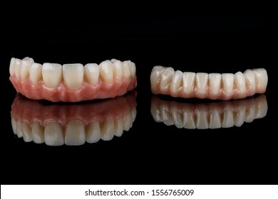 high-quality dentures of the upper and lower jaw with a pink gum on black glass