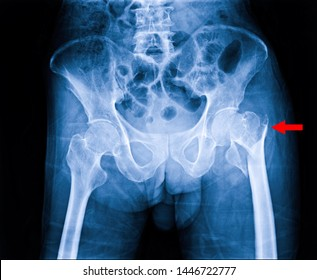 Hip fracture xray photo image. X-ray of hip joint for elderly patient who falling in the house. Bone process to blue tone and fracture area marked in red color.