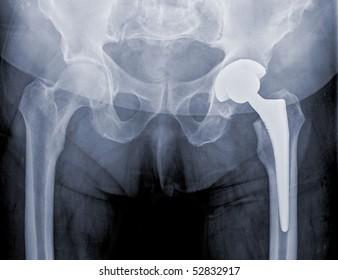 hip replacement surgery, good outcome