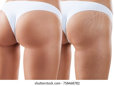 Hips with scars before and after treatment.