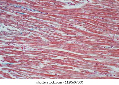 Histology of human cardiac muscle under microscope view for education, Human tissue histology.