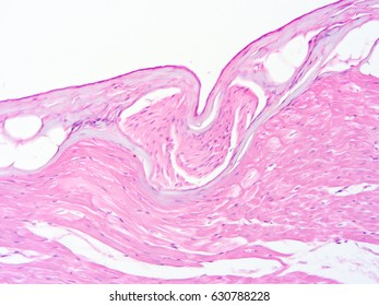 Histology of human heart tissue, show cardiac muscle tissue and connective tissue with microscope view
