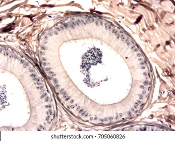 Histology of human testis and epididymis tissue, show epithelium tissue, connective tissue and spermatogenesis cell with microscope view