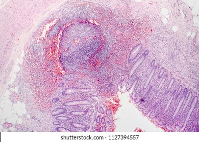 Histopathology of chronic appendicitis, light micrograph, photo under microscope