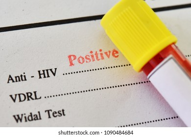 HIV positive test result with blood sample