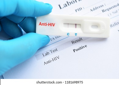 HIV positive test result by using rapid test cassette