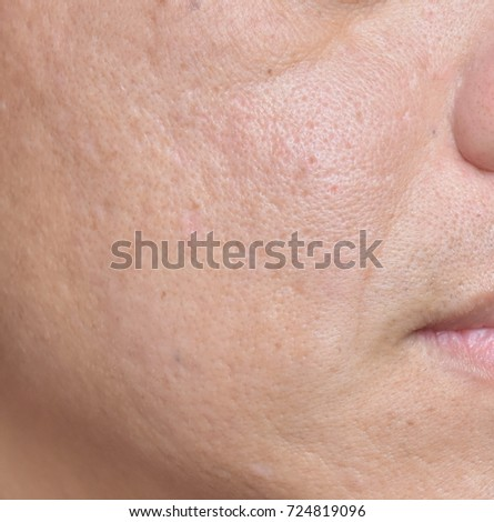 rough skin on face